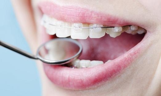 Стоматолог подберет оптимальный вариант