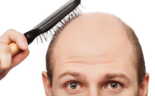 Эффективные методы лечения облысения у мужчин