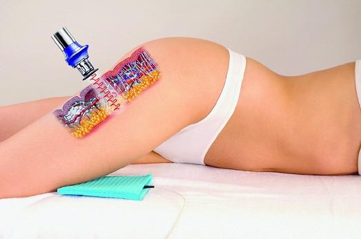 массаж удаления жира с живота