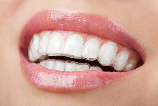 Плюсы и минусы выравнивания зубов с помощью капп